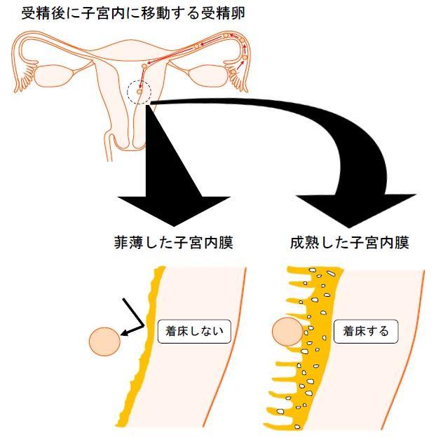 膜 する 厚く 内 子宮
